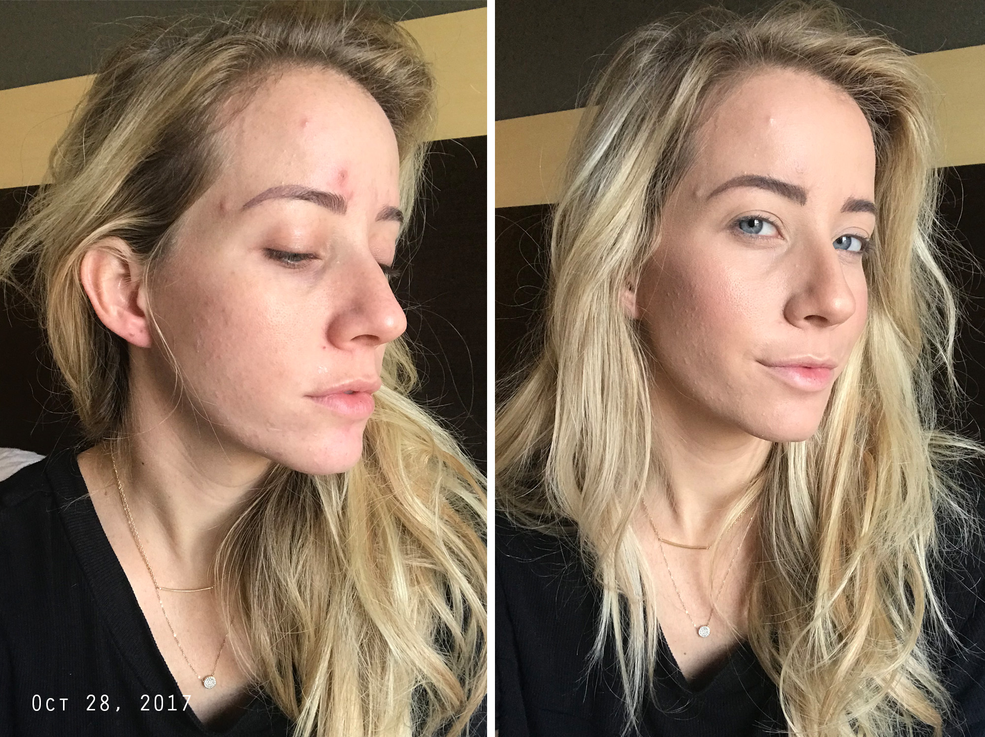How To Clear Up Hormonal Acne My Journey Twist Me Pretty