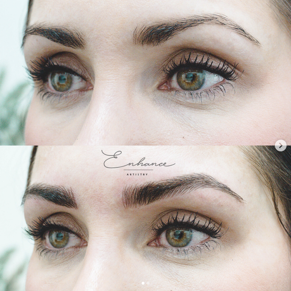 How Microblading Changed My Eyebrows and Why I'm Removing It