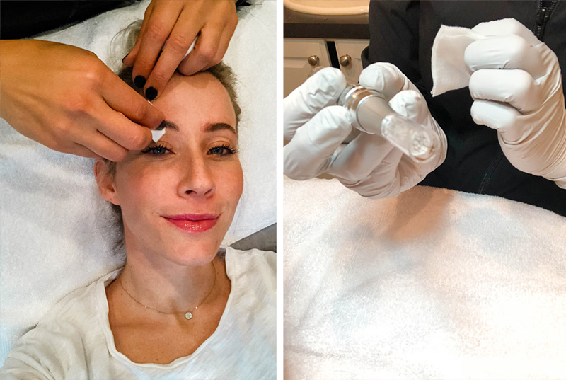How to Get Rid of Microblading with 3 Different Solutions