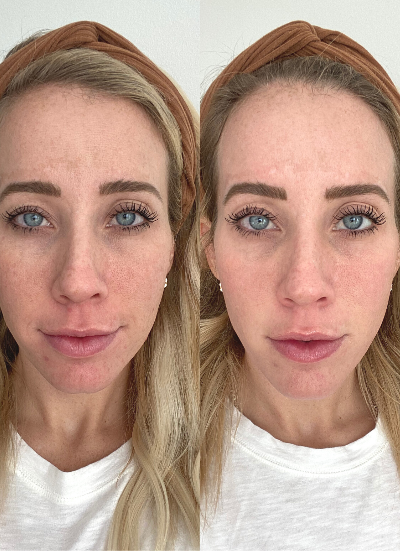 Before and after my laser treatment for my melasma. www.twistmepretty.com