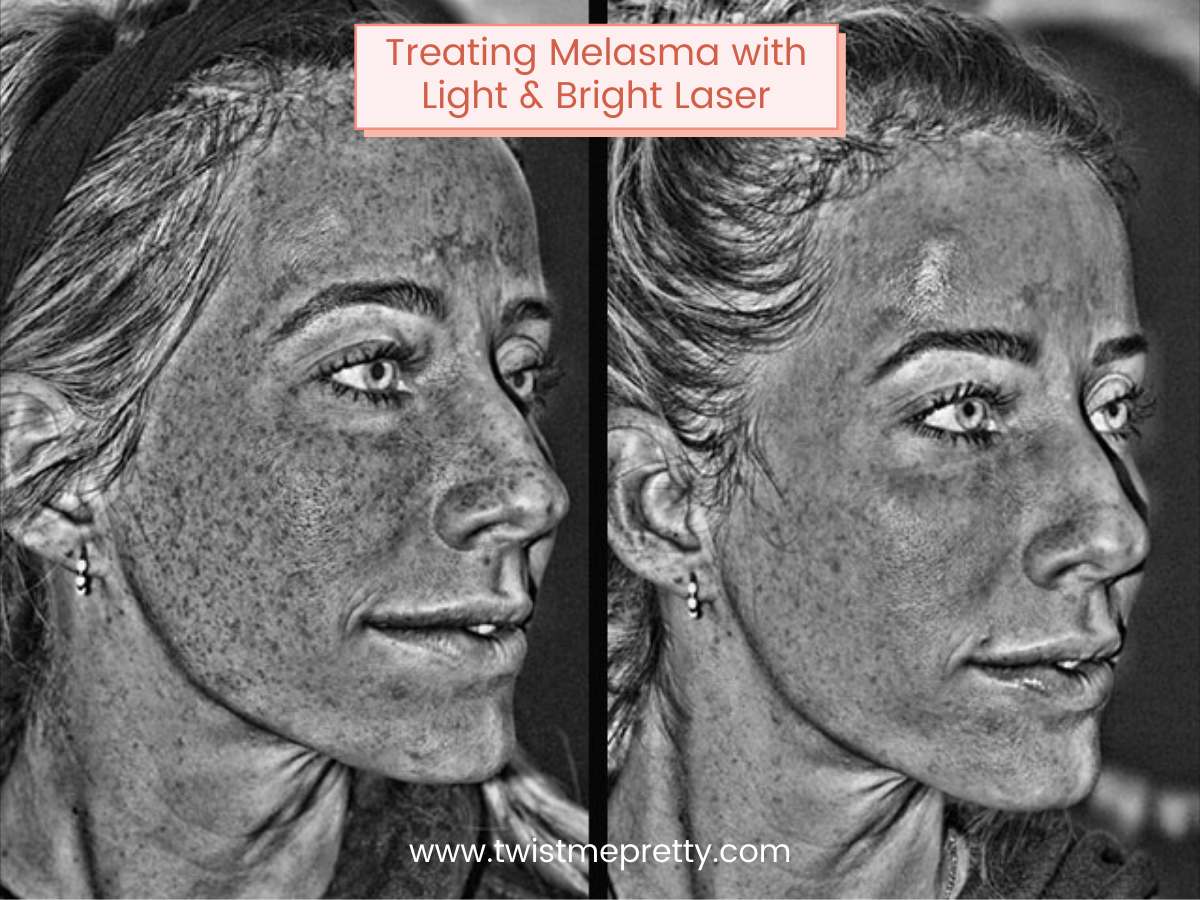 How I am treating my melasma with the Light and Bright Laser from Gateway Laser Center www.twistmepretty.com